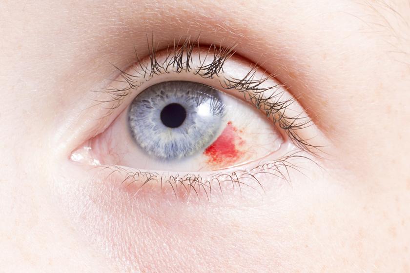 duzzanat a szem alatt magas vérnyomás esetén