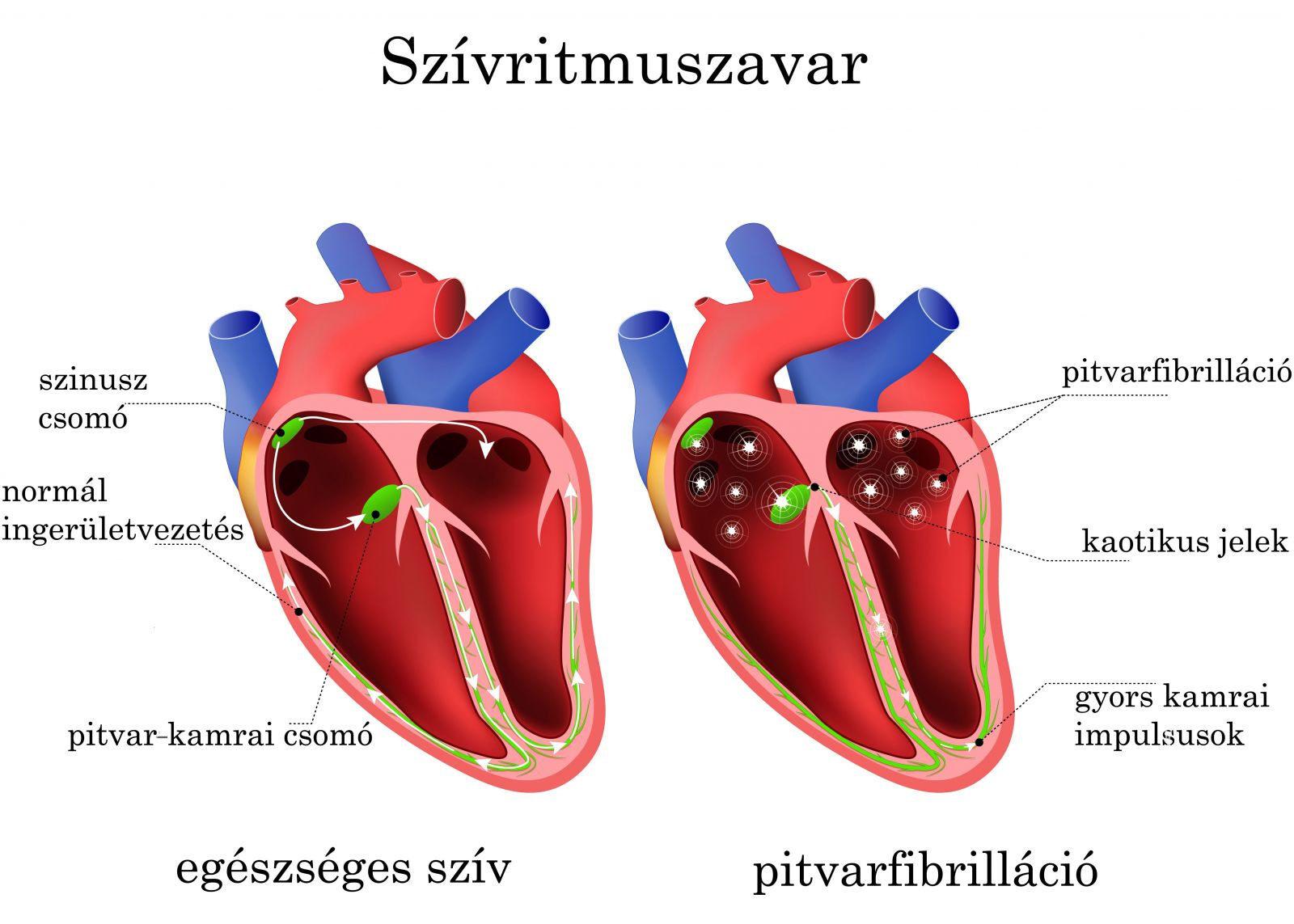 Szapora szívverés, magas pulzus