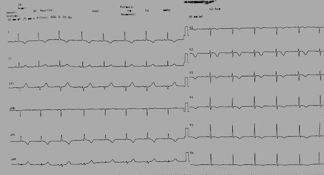 nincs magas vérnyomás videó tanfolyam a hipertónia kezelésének perspektívái