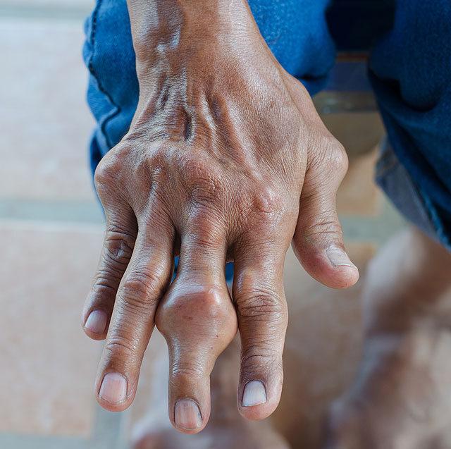 köszvény kezelése hipertóniával