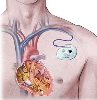 magas vérnyomás pacemaker)