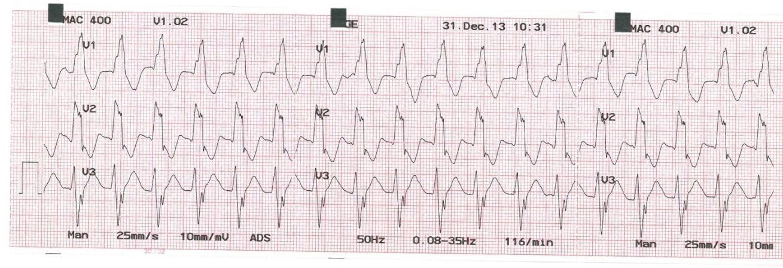 magas vérnyomás 1 fokos sinus tachycardia)