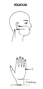 magas vérnyomás tinnitus hogyan kell kezelni)