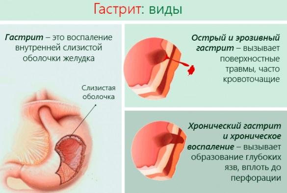 pontok a füleken a magas vérnyomás miatt