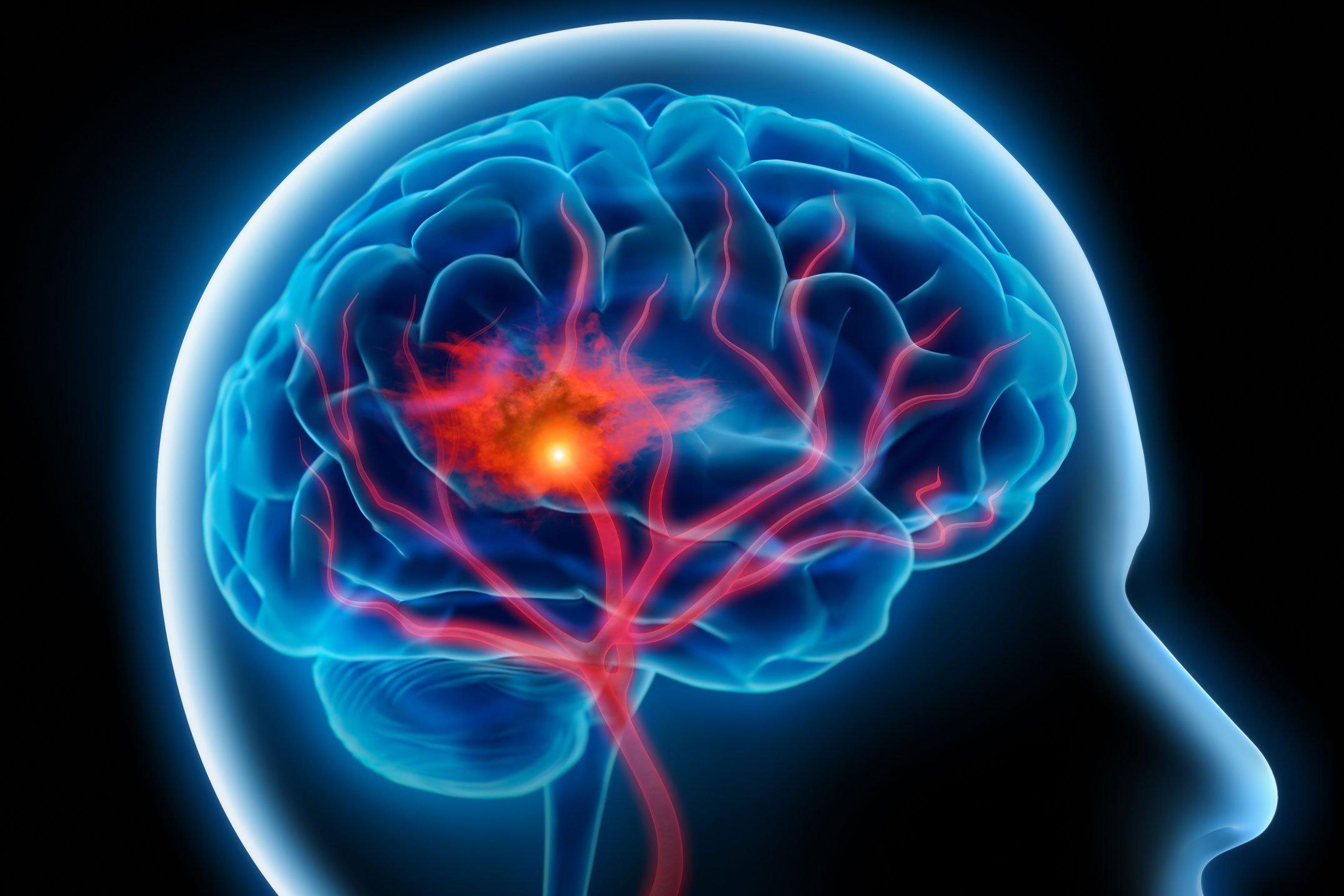 stroke és magas vérnyomás elleni gyógyszerek