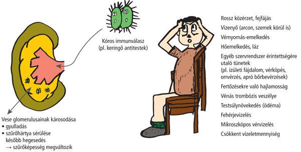 plazmaferezis és hipertónia