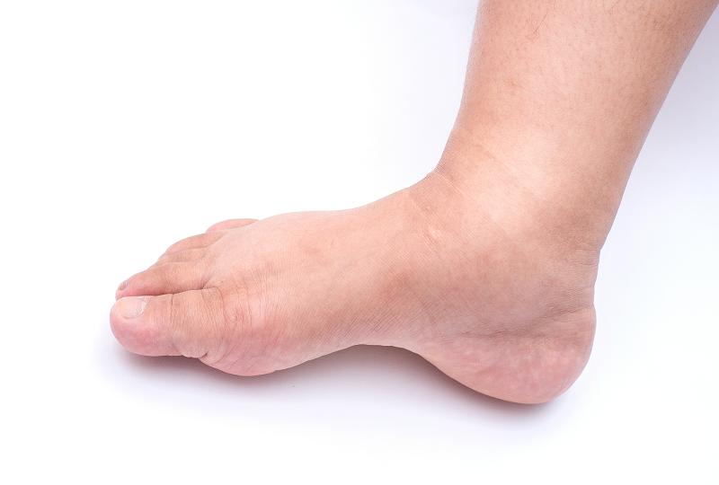 a lábak duzzanata magas vérnyomás kezeléssel)