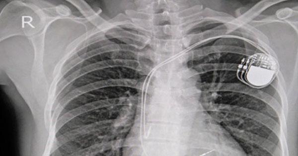 hát- és nyakmasszázs magas vérnyomás esetén frottír hipertónia mi ez