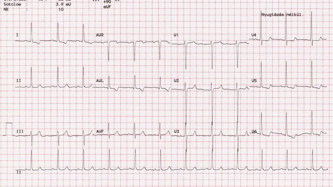 A szív sinus tachycardia: mi az, az okok és a kezelés - Magas vérnyomás November