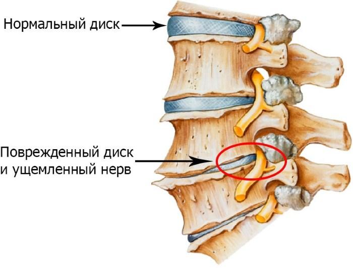 a nyaki gerinc osteochondrosis és a magas vérnyomás)