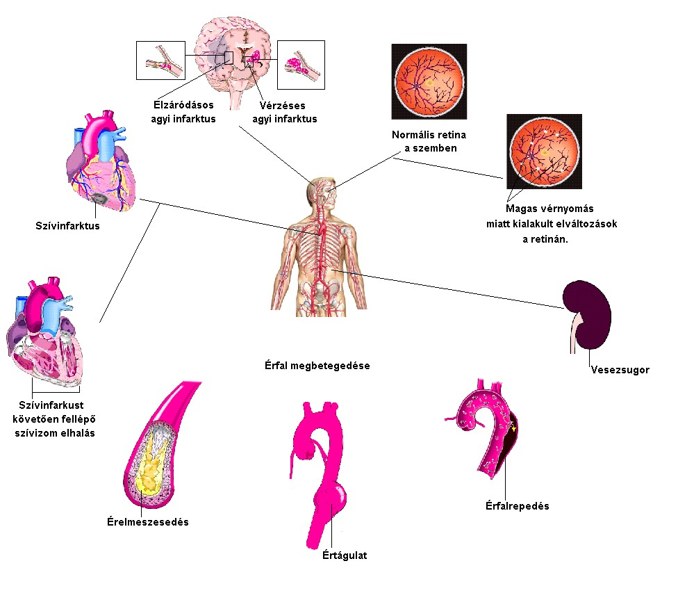 vese magas vérnyomás következményei)