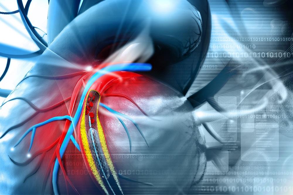 stentelés magas vérnyomás esetén)