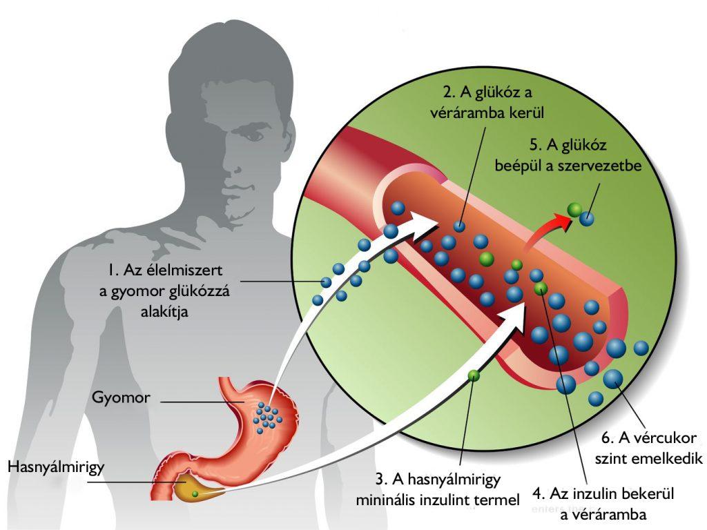 magas vérnyomás és 2-es típusú diabetes mellitus kezelés gyümölcsital magas vérnyomás ellen